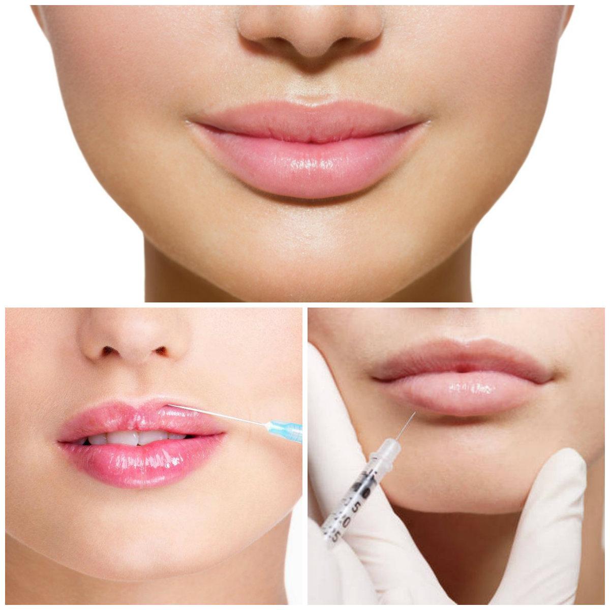 день контурная пластика губ фото меняют