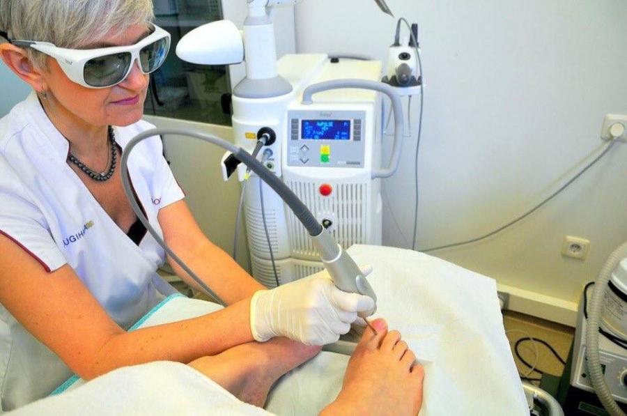 Лазерное лечение грибка Екатеринбург